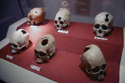 Pre-columbian skull surgery (trephination)